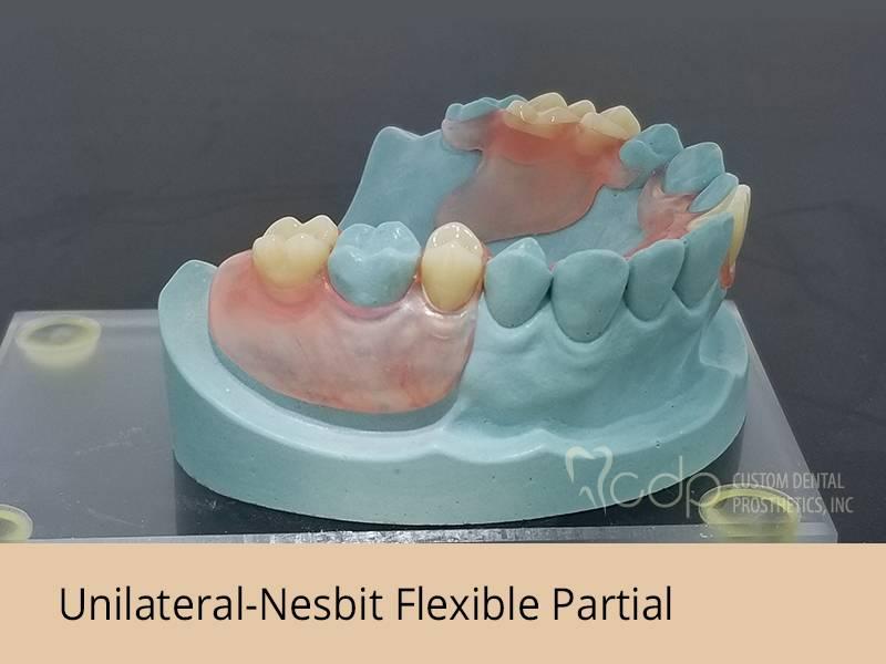Custom Dental Prosthetics - dentist    Photo 4 of 7   Address: 19155 SE McLoughlin Blvd #105, Gladstone, OR 97027, USA   Phone: (800) 595-3495