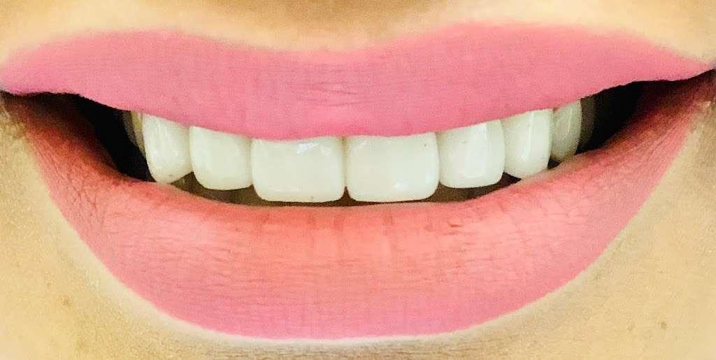 FRESH DENTAL CARE - 45 North - dentist  | Photo 7 of 9 | Address: 5900 North Fwy Suite #105, Houston, TX 77076, USA | Phone: (281) 771-1111