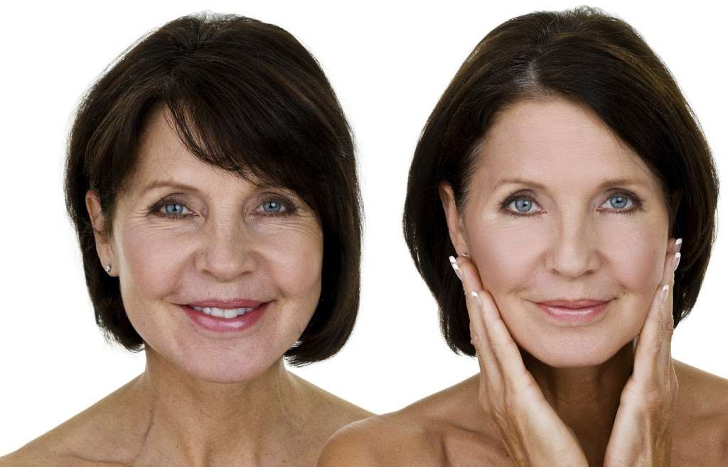 Forever Young MedSpa - hair care    Photo 8 of 10   Address: 8723 Stirling Rd, Cooper City, FL 33328, USA   Phone: (954) 613-2037