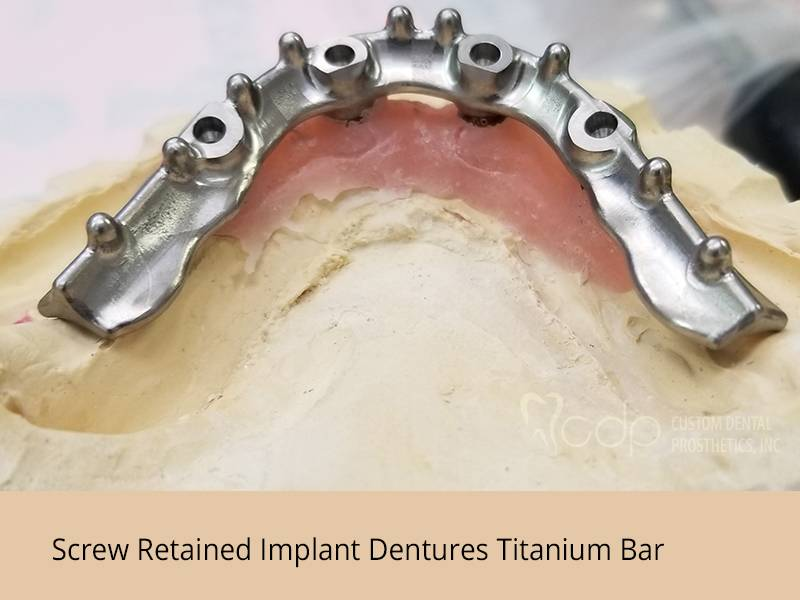 Custom Dental Prosthetics - dentist    Photo 5 of 7   Address: 19155 SE McLoughlin Blvd #105, Gladstone, OR 97027, USA   Phone: (800) 595-3495