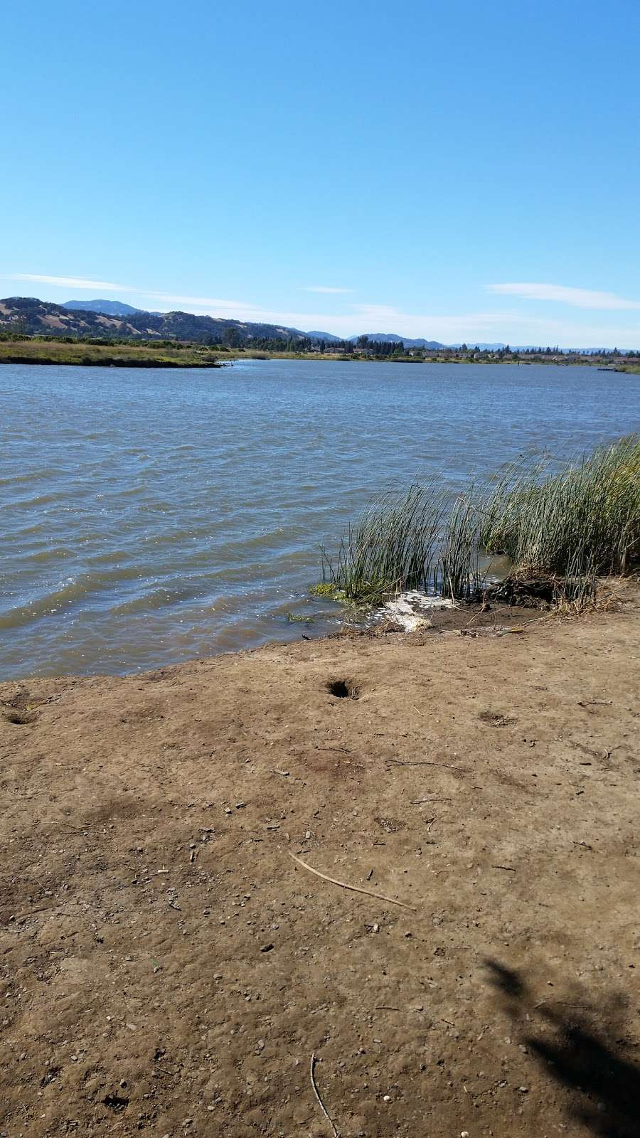 The Meadows of Napa Valley - health  | Photo 8 of 10 | Address: 1800 Atrium Pkwy, Napa, CA 94559, USA | Phone: (707) 257-7885