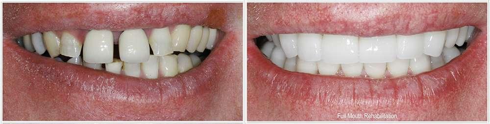 David de Jongh, DDS - dentist  | Photo 4 of 8 | Address: 13141 Farm to Market 1960 Rd W Ste 300, Houston, TX 77065, USA | Phone: (832) 912-6670