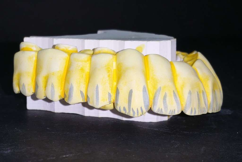 4e Dental Lab - dentist  | Photo 1 of 13 | Address: 7372 Walnut Ave suite # c, Buena Park, CA 90620, USA | Phone: (714) 266-0523