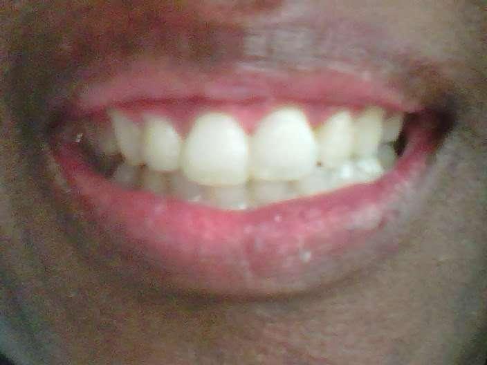Brighter Smiles by Detra - dentist  | Photo 5 of 5 | Address: 7544 E Grand Ave, Dallas, TX 75214, USA | Phone: (214) 843-0326