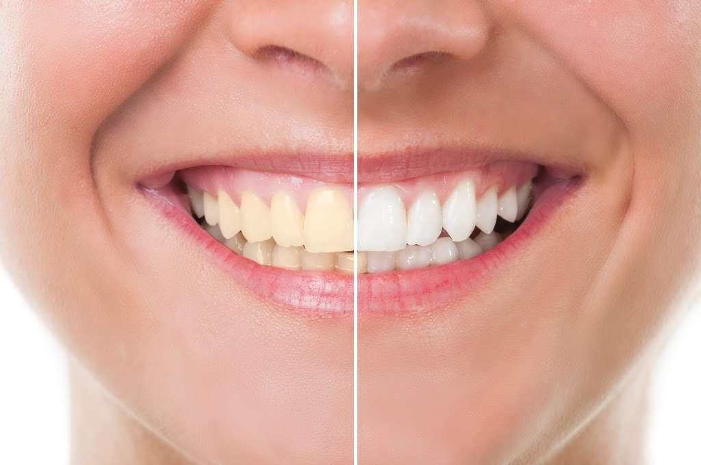 All Family Dental & Braces - Southwest Chicago - dentist  | Photo 5 of 8 | Address: 8541 S Cicero Ave, Chicago, IL 60652, USA | Phone: (708) 762-9966