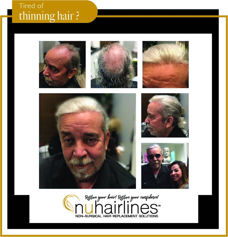 NUHAIRLINES - Non Surgical Hair Replacement Solutions - hair care  | Photo 9 of 10 | Address: 9689 N. Hayden Rd. Ste. 100 In the Salon Boutique Building Suite #10, Scottsdale, AZ 85258, USA | Phone: (480) 850-3120