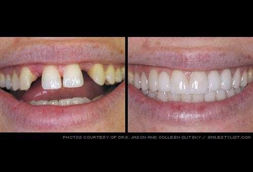 Parham Dental Team - dentist    Photo 9 of 9   Address: 3100 N OConnor Rd # 100, Irving, TX 75062, USA   Phone: (972) 255-9000