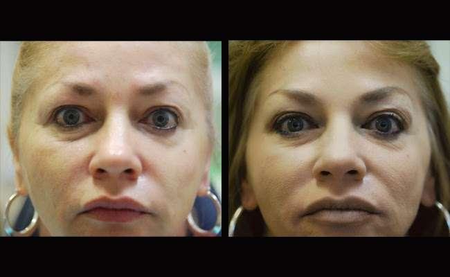 Parham Dental Team - dentist    Photo 7 of 9   Address: 3100 N OConnor Rd # 100, Irving, TX 75062, USA   Phone: (972) 255-9000