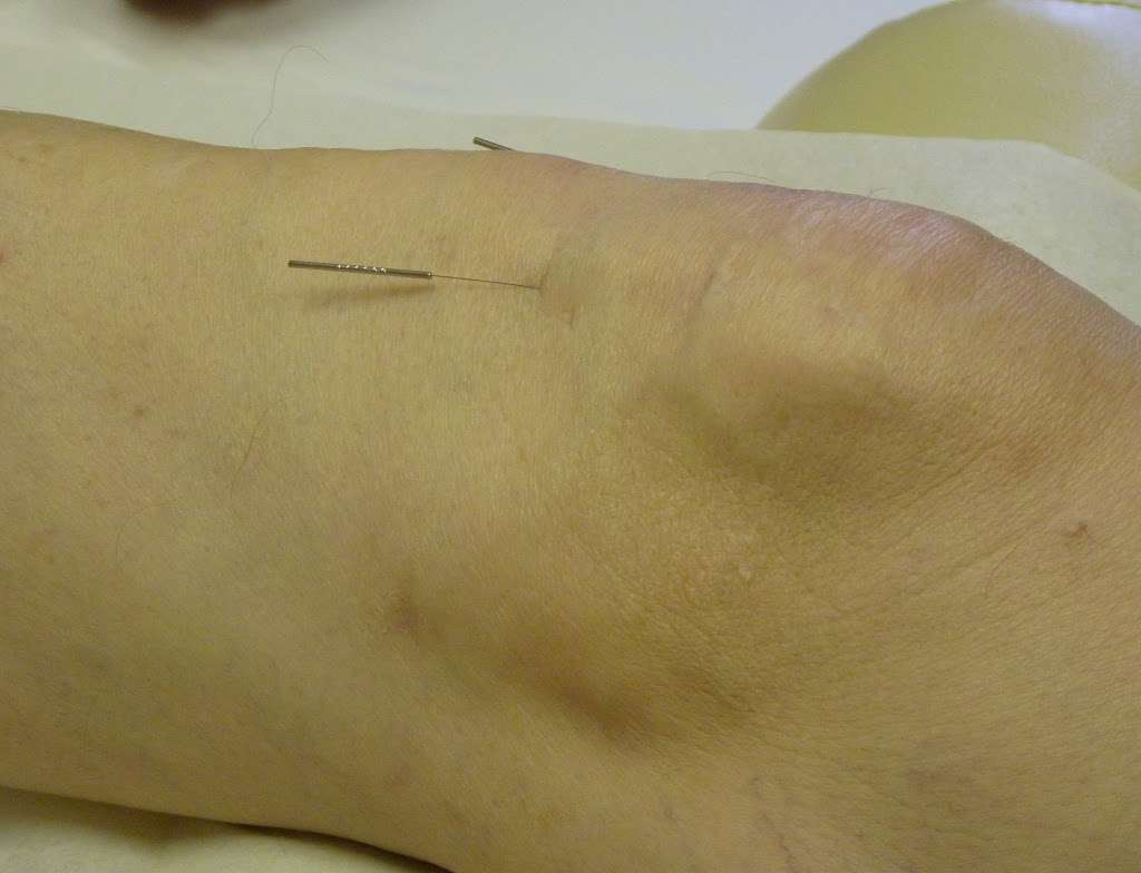 Flying Needle Oriental Medicine, PLLC - health    Photo 2 of 10   Address: 9107 Belton Bend Ct, Cypress, TX 77433, USA   Phone: (832) 557-8535