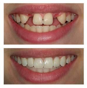 Minnesota Dental Arts - doctor  | Photo 6 of 19 | Address: 5565 Blaine Ave E #290, Inver Grove Heights, MN 55076, USA | Phone: (651) 552-0404