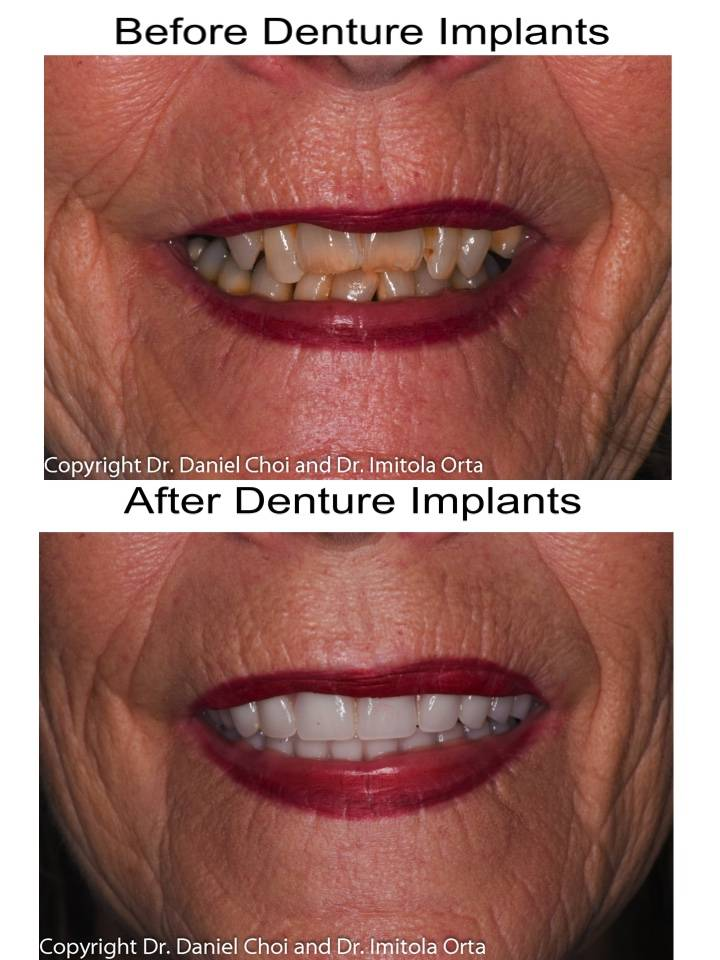 North Texas Dental Surgery Wisdom Teeth and Denture Implant Cent - dentist  | Photo 3 of 7 | Address: 5345 W University Dr #100, McKinney, TX 75071, USA | Phone: (214) 592-0692