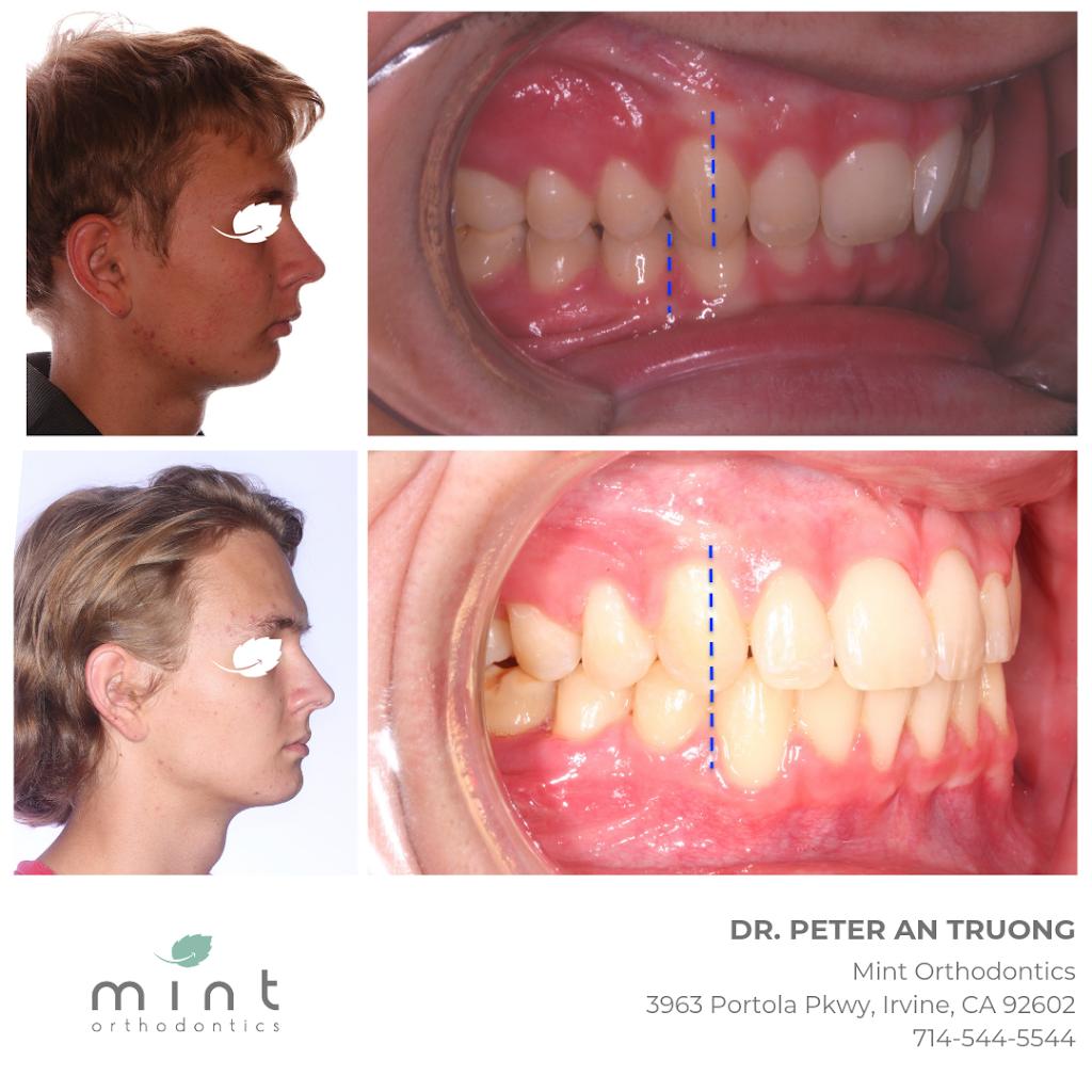 Mint Orthodontics - dentist  | Photo 5 of 7 | Address: 3963 Portola Pkwy, Irvine, CA 92602, USA | Phone: (714) 544-5544