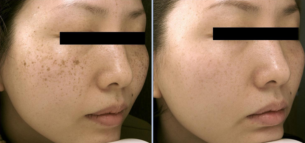 BARE NY Laser Hair Removal & Aesthetics - hair care  | Photo 10 of 10 | Address: 253-15 80th Ave Suite 211, Queens, NY 11004, USA | Phone: (844) 622-7369