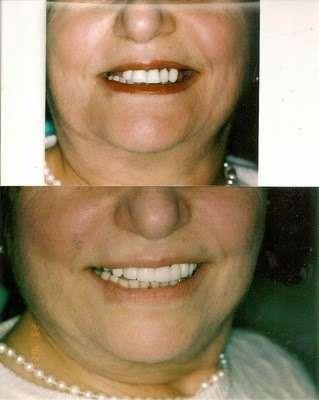 The Kargodorian Smile Design Institute - dentist  | Photo 10 of 10 | Address: 11200 Corbin Ave #100, Porter Ranch, CA 91326, USA | Phone: (818) 832-6000