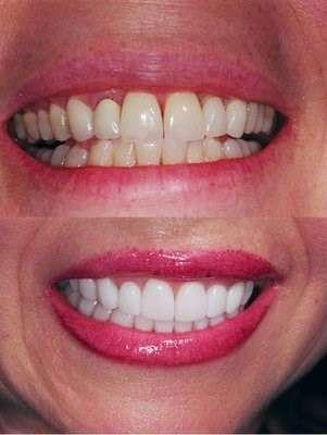 The Kargodorian Smile Design Institute - dentist  | Photo 6 of 10 | Address: 11200 Corbin Ave #100, Porter Ranch, CA 91326, USA | Phone: (818) 832-6000