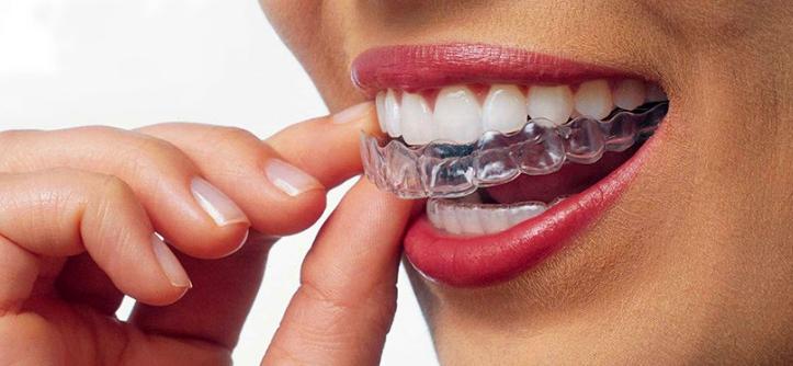 Flossome Orthodontics - dentist  | Photo 2 of 9 | Address: 7887 N Kendall Dr #103, Miami, FL 33156, USA | Phone: (305) 275-1094