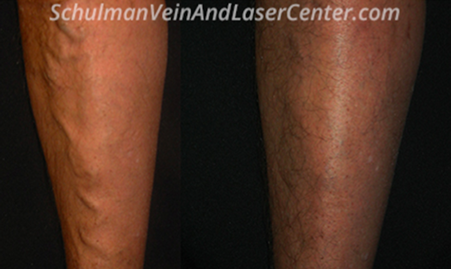 Schulman Vein and Laser Center, Martin L. Schulman M.D. - hospital  | Photo 7 of 7 | Address: 800 Community Dr # 211, Manhasset, NY 11030, USA | Phone: (516) 482-4477