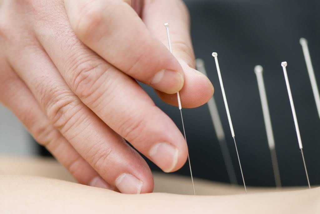 Huaren Health Center (Acupuncture) - doctor  | Photo 6 of 9 | Address: 46923 Warm Springs Blvd #104, Fremont, CA 94539, USA | Phone: (510) 598-5698