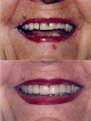 The Kargodorian Smile Design Institute - dentist  | Photo 9 of 10 | Address: 11200 Corbin Ave #100, Porter Ranch, CA 91326, USA | Phone: (818) 832-6000
