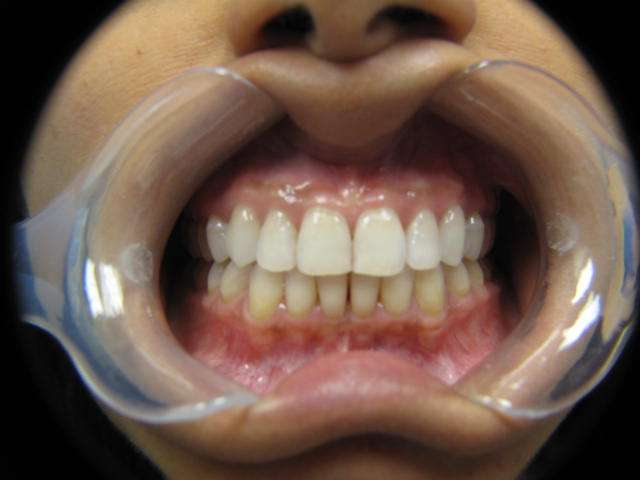 Leesburg Spa Dentistry: C. Anne Saxena, DMD - dentist  | Photo 2 of 6 | Address: 44790 Maynard Square #140, Ashburn, VA 20147, USA | Phone: (703) 423-0821