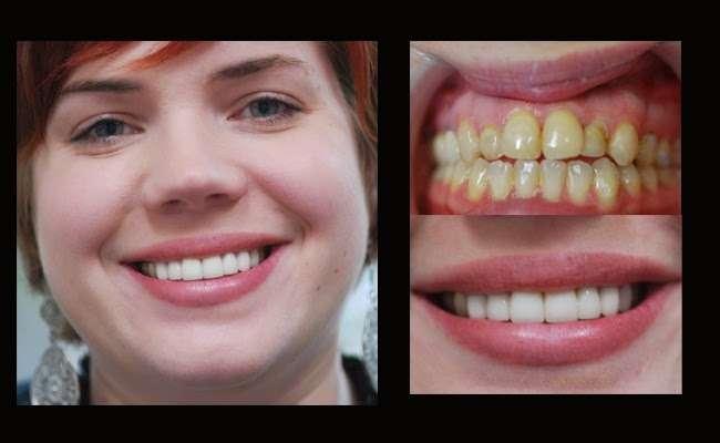 Parham Dental Team - dentist    Photo 5 of 9   Address: 3100 N OConnor Rd # 100, Irving, TX 75062, USA   Phone: (972) 255-9000