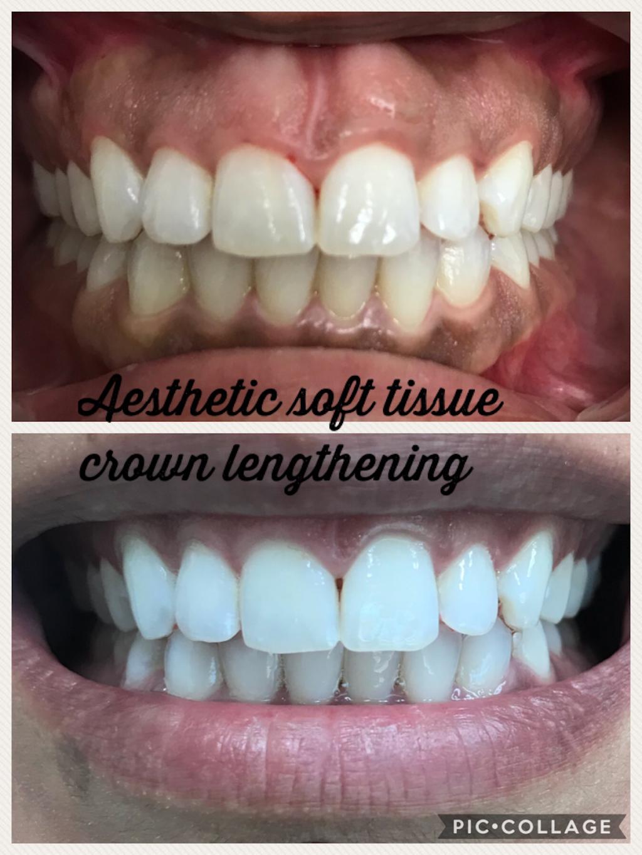 Doc Dental Smiles - dentist    Photo 5 of 9   Address: 28401 Bradley Rd B, Menifee, CA 92586, USA   Phone: (951) 679-6677