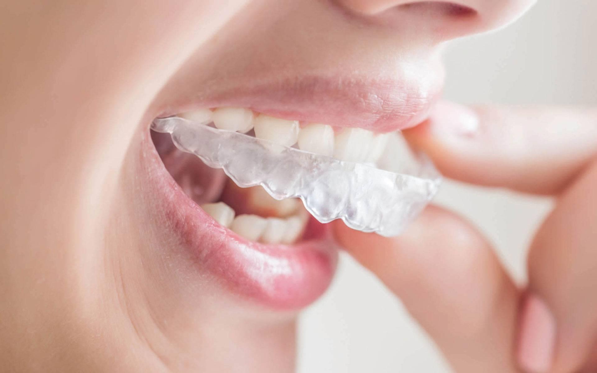 Simply Teeth - dentist  | Photo 4 of 4 | Address: 438 Green Ln, Ilford IG3 9LD, UK | Phone: +44 20 8590 0575