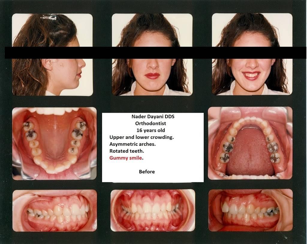 Nader Dayani, DDS - dentist  | Photo 8 of 9 | Address: 18124 Culver Dr ste a, Irvine, CA 92612, USA | Phone: (949) 552-5890