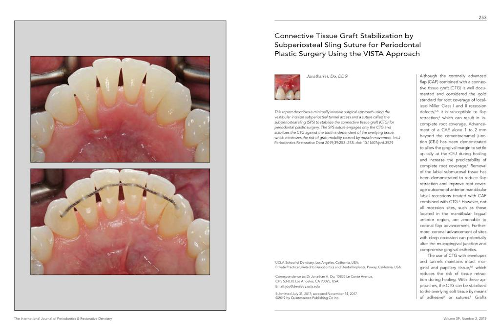 Jonathan H Do DDS: Board-Certified Periodontist - dentist    Photo 8 of 10   Address: 13422 Pomerado Rd #101, Poway, CA 92064, USA   Phone: (858) 375-6585