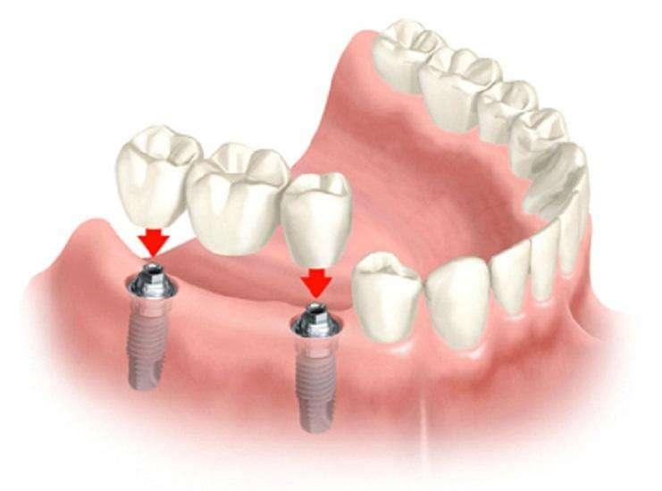 Dr Naser Sharifi Implant Dentistry - dentist  | Photo 3 of 10 | Address: 25315 80th Ave Ste 1, Queens, NY 11004, USA | Phone: (718) 470-9000
