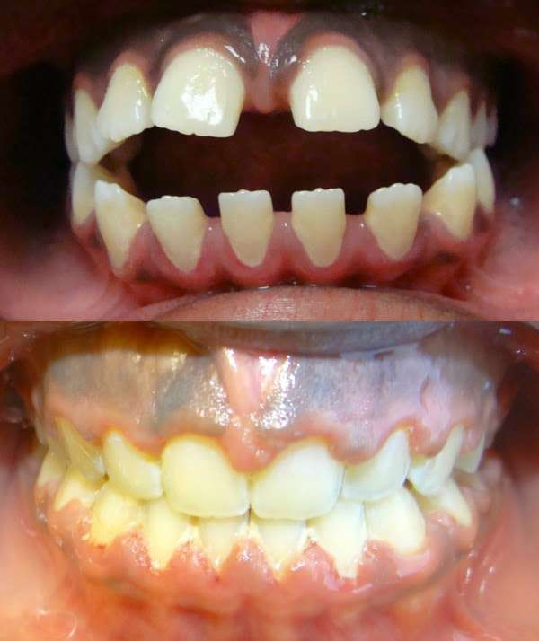 Diamond Braces - dentist  | Photo 8 of 10 | Address: 2992 Third Ave, Bronx, NY 10455, USA | Phone: (718) 292-4700