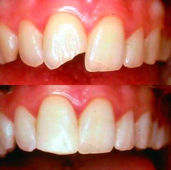 Family Dental Care - dentist    Photo 3 of 5   Address: 211 Roman Rd, London E2 0QY, UK   Phone: 020 8980 9838