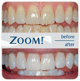 Advanced Dental Group - dentist    Photo 1 of 7   Address: 1450 El Camino Real Unit #D, Tustin, CA 92780, USA   Phone: (714) 665-1111