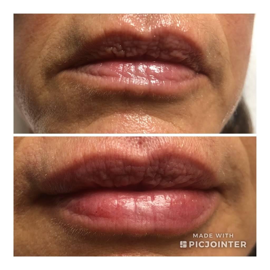 Elegant Image Med Spa - hair care  | Photo 4 of 6 | Address: 1704 Mall Cir, Fort Worth, TX 76116, USA | Phone: (817) 888-7600
