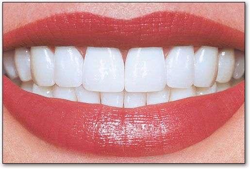 Lakeland Smiles - dentist  | Photo 7 of 10 | Address: 1220 W Daughtery Rd, Lakeland, FL 33810, USA | Phone: (863) 815-9009