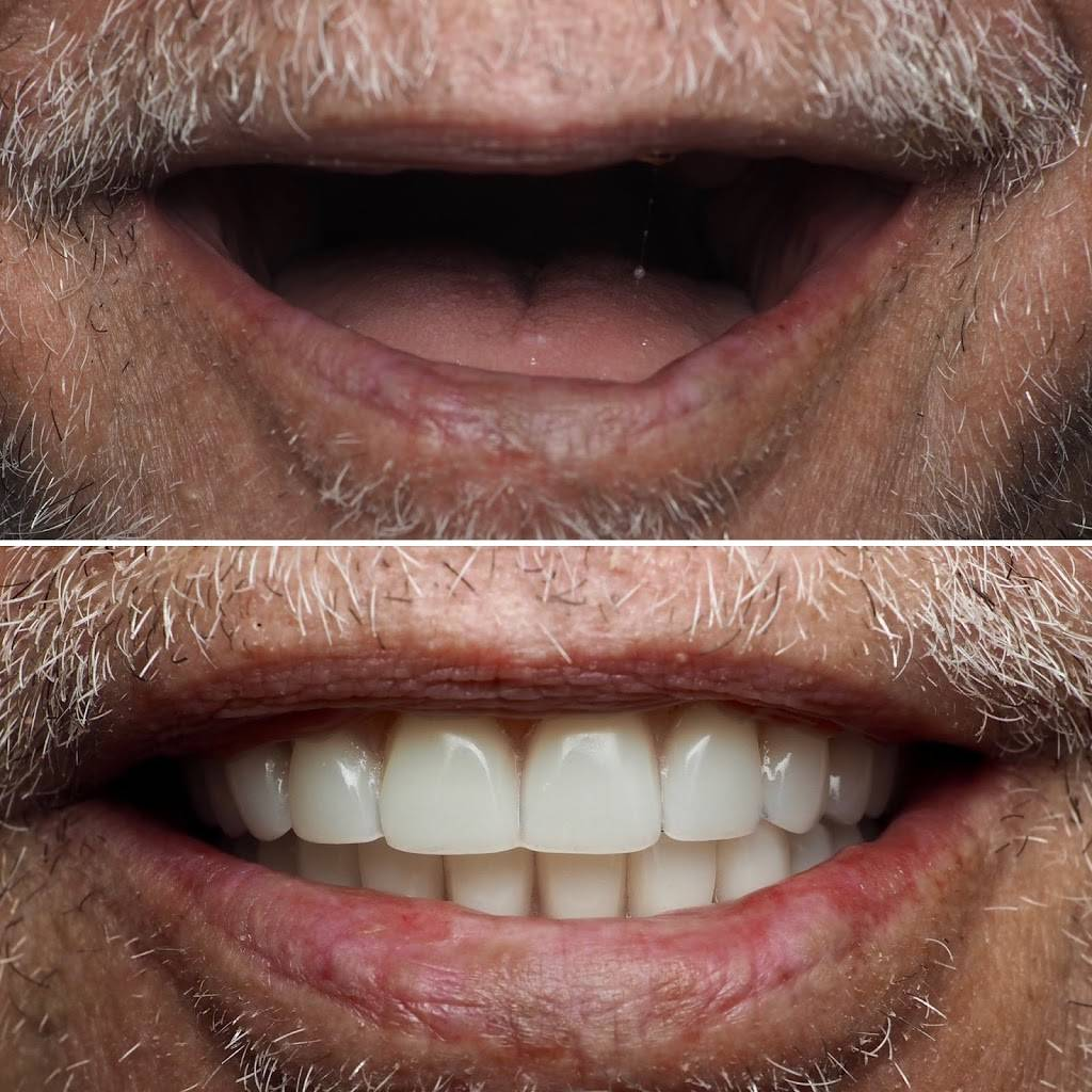 Vida Dental Buda - dentist    Photo 1 of 9   Address: 15300 S IH 35 Frontage Rd # 300, Buda, TX 78610, USA   Phone: (512) 523-8183