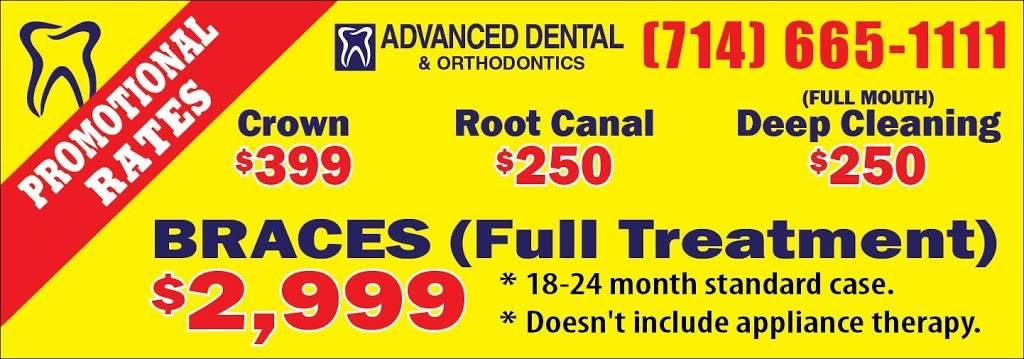 Advanced Dental Group - dentist    Photo 7 of 7   Address: 1450 El Camino Real Unit #D, Tustin, CA 92780, USA   Phone: (714) 665-1111