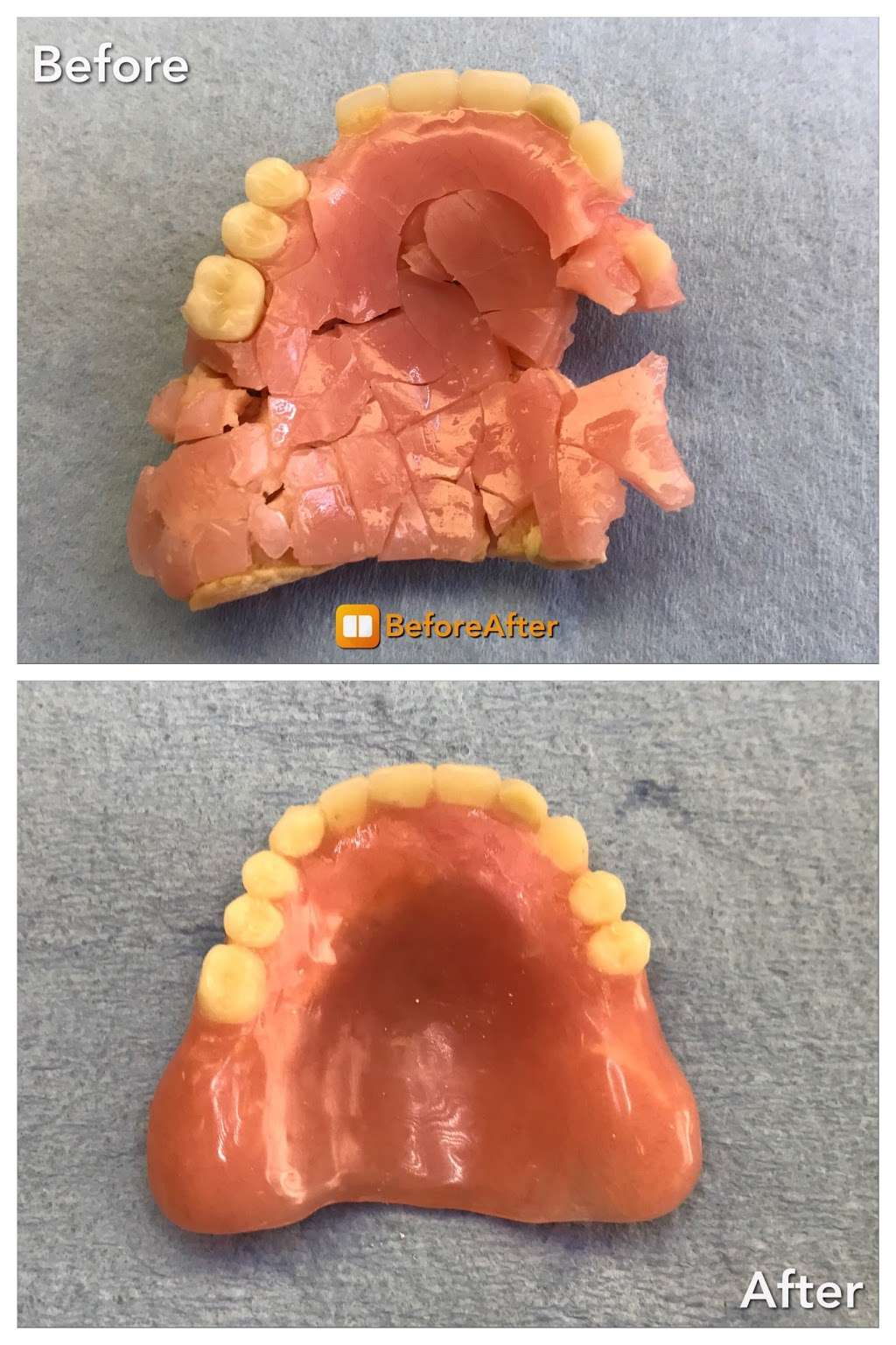 Denture Repairs by Lori - dentist  | Photo 4 of 4 | Address: 3405 Quince St, San Diego, CA 92104, USA | Phone: (619) 851-1169