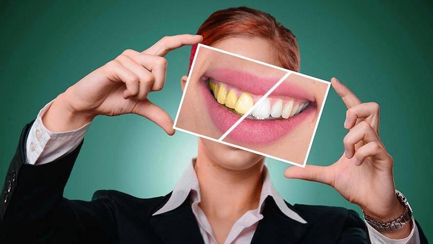 Dental Hub - dentist  | Photo 1 of 9 | Address: 3483 W, FM 544 SUITE 112, Wylie, TX 75098, USA | Phone: (972) 371-0441
