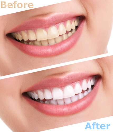 Art Of Dentistry Institute - dentist    Photo 8 of 10   Address: 2646 Dupont Dr Suite 200, Irvine, CA 92612, USA   Phone: (949) 955-3366