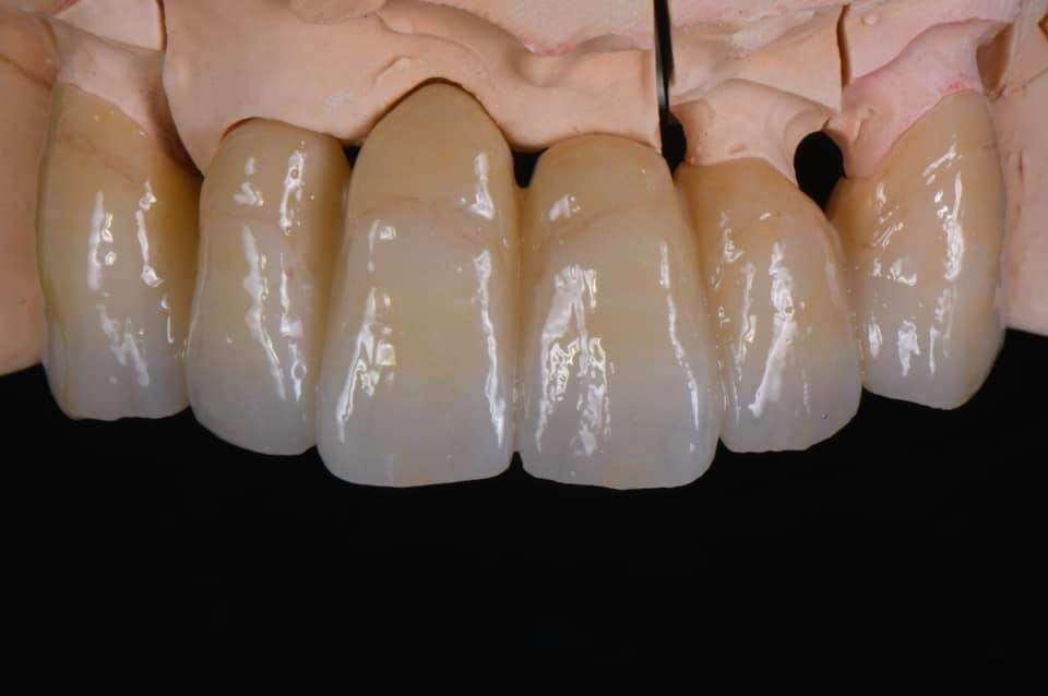 Bruce Lee Dental Art Laboratory - dentist    Photo 3 of 3   Address: 7 Lesa Ln, Hillsdale, NJ 07642, USA   Phone: (201) 784-8777