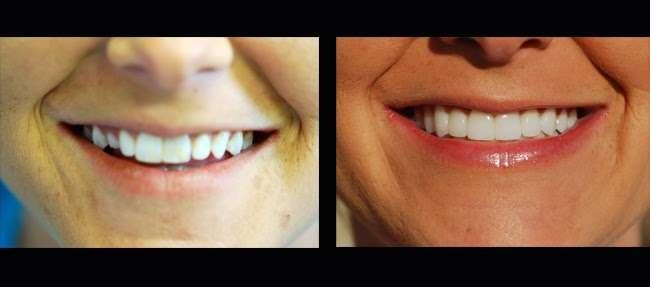 Parham Dental Team - dentist    Photo 8 of 9   Address: 3100 N OConnor Rd # 100, Irving, TX 75062, USA   Phone: (972) 255-9000