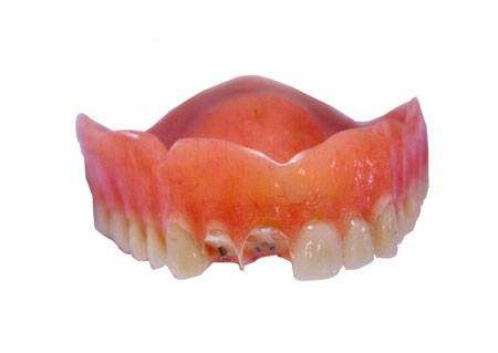 Denture Repairs by Lori - dentist  | Photo 3 of 4 | Address: 3405 Quince St, San Diego, CA 92104, USA | Phone: (619) 851-1169