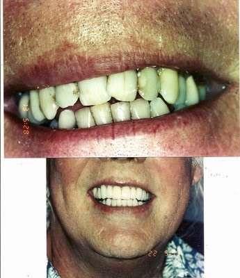 The Kargodorian Smile Design Institute - dentist  | Photo 8 of 10 | Address: 11200 Corbin Ave #100, Porter Ranch, CA 91326, USA | Phone: (818) 832-6000