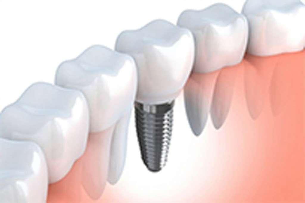 Lakeland Smiles - dentist  | Photo 5 of 10 | Address: 1220 W Daughtery Rd, Lakeland, FL 33810, USA | Phone: (863) 815-9009