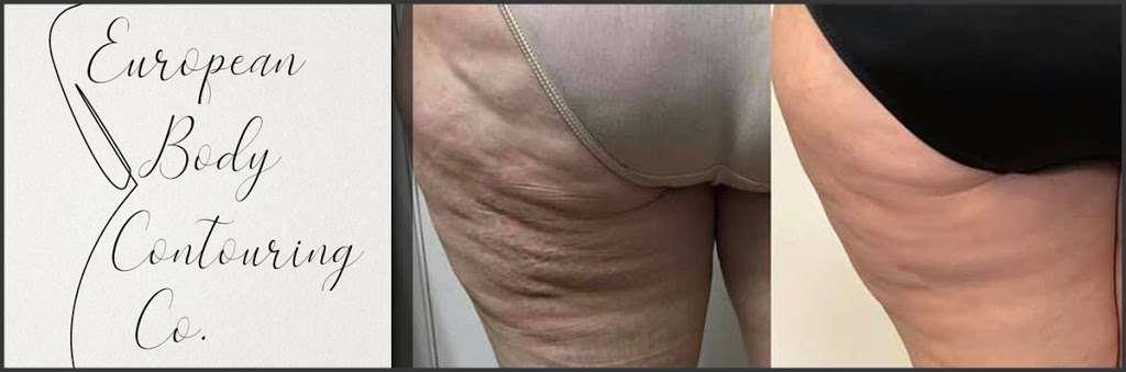 European Body Contouring Co. - health  | Photo 4 of 9 | Address: 22211 W, I-10 Suite #1201, San Antonio, TX 78257, USA | Phone: (210) 361-7851