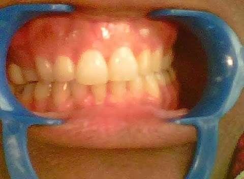 Brighter Smiles by Detra - dentist  | Photo 3 of 5 | Address: 7544 E Grand Ave, Dallas, TX 75214, USA | Phone: (214) 843-0326