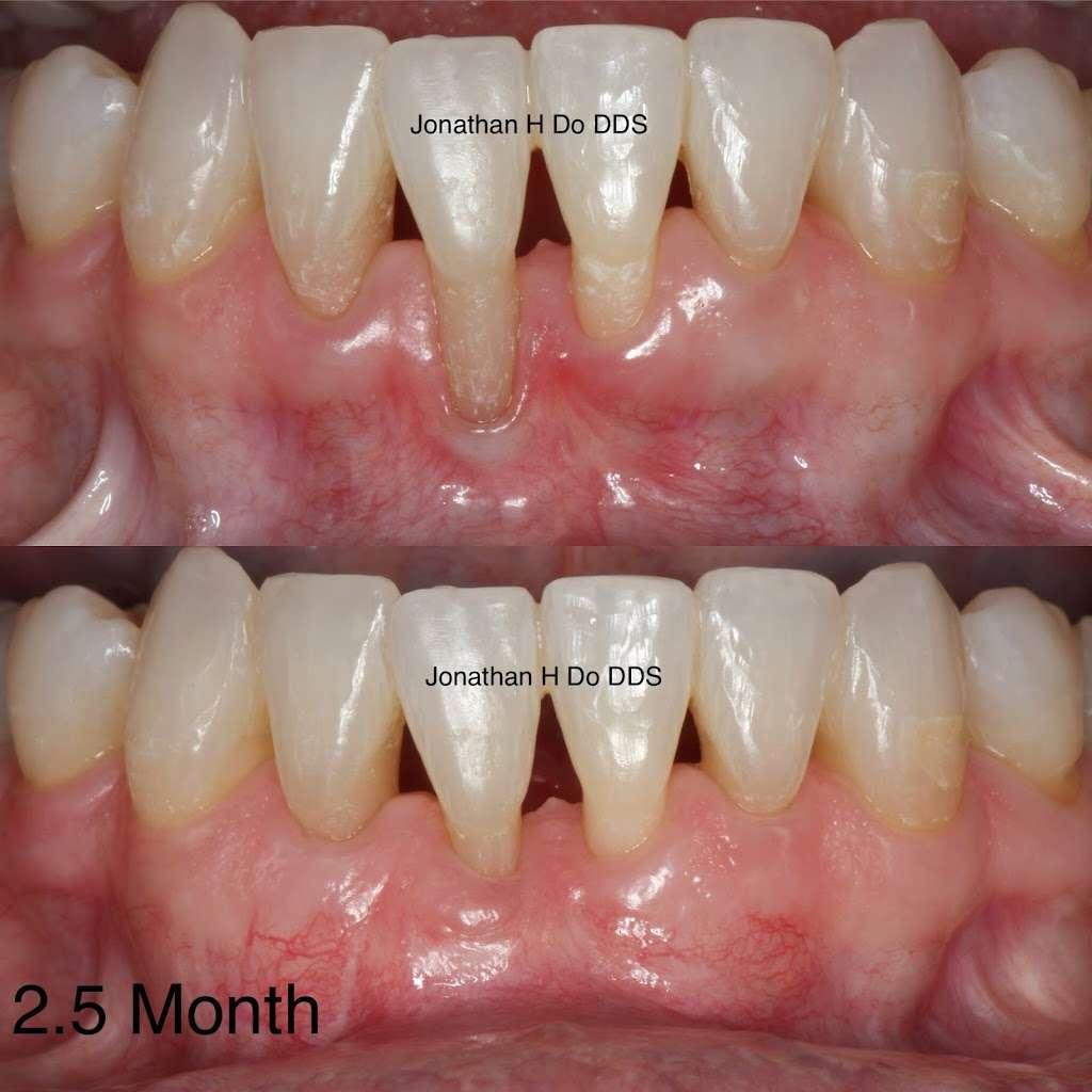 Jonathan H Do DDS: Board-Certified Periodontist - dentist    Photo 5 of 10   Address: 13422 Pomerado Rd #101, Poway, CA 92064, USA   Phone: (858) 375-6585