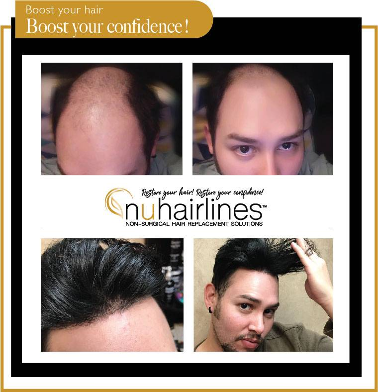 NUHAIRLINES - Non Surgical Hair Replacement Solutions - hair care  | Photo 2 of 10 | Address: 9689 N. Hayden Rd. Ste. 100 In the Salon Boutique Building Suite #10, Scottsdale, AZ 85258, USA | Phone: (480) 850-3120