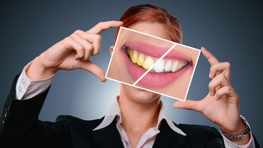 Dental Hub - dentist  | Photo 2 of 9 | Address: 3483 W, FM 544 SUITE 112, Wylie, TX 75098, USA | Phone: (972) 371-0441